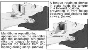 Somnos Sleep Clinic Feedback